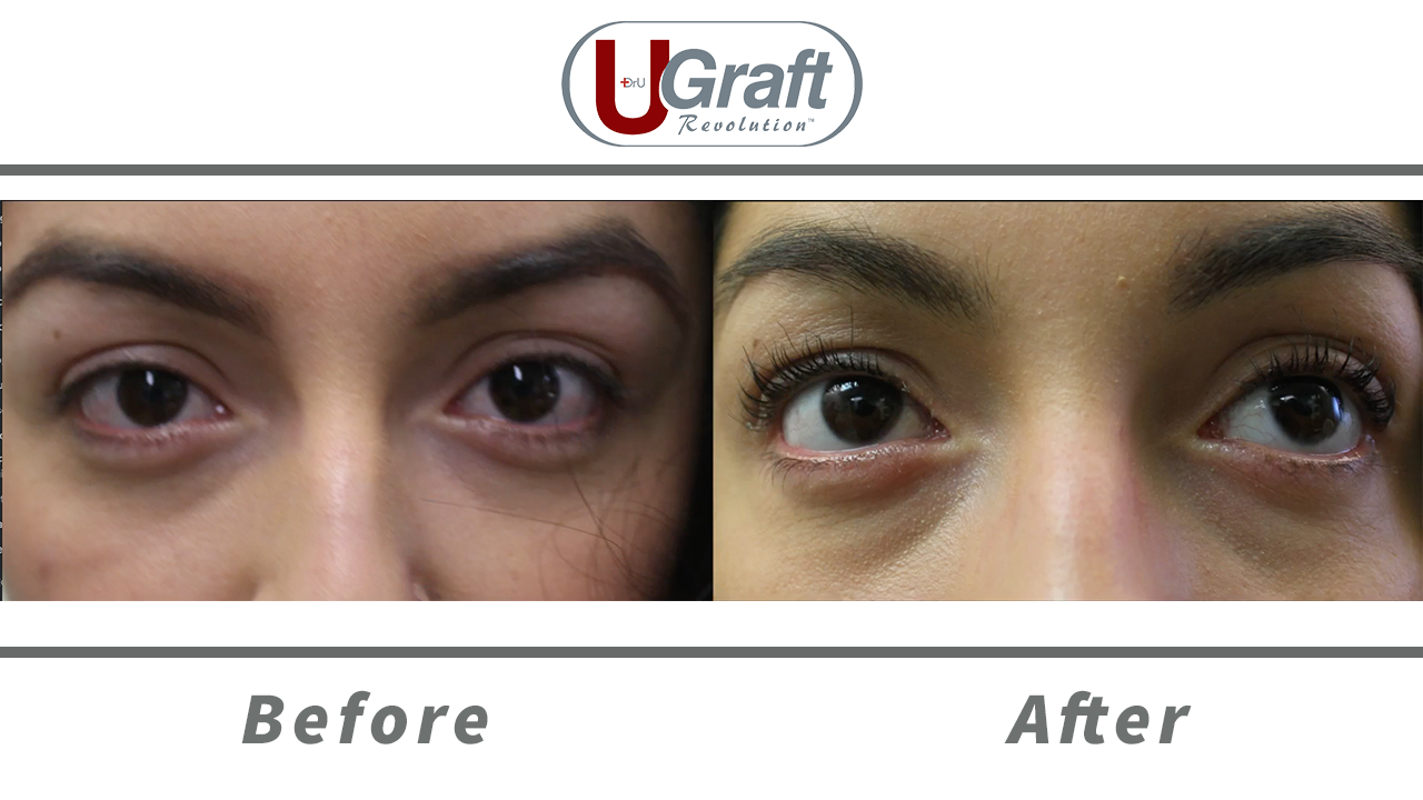 Patient 6 months after her cosmetic eyelash transplant. Roughly 30 follicles were grafted onto each upper eyelid using specialized needles.