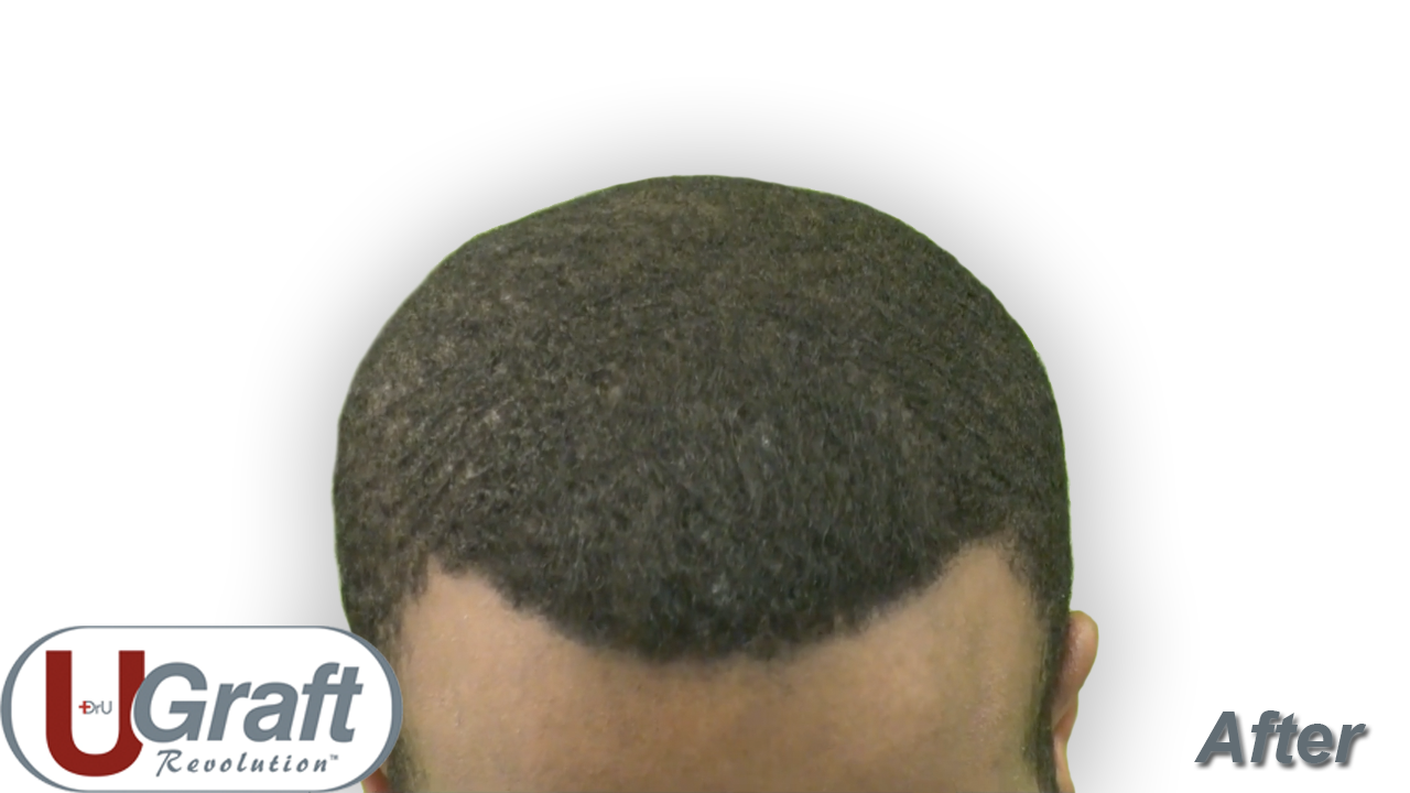 Overhead view of the patient's hairline and top 10 months after the last hair transplant procedure with Dr.UGraft™. 2320 grafts were extracted in total over the course of two procedures.