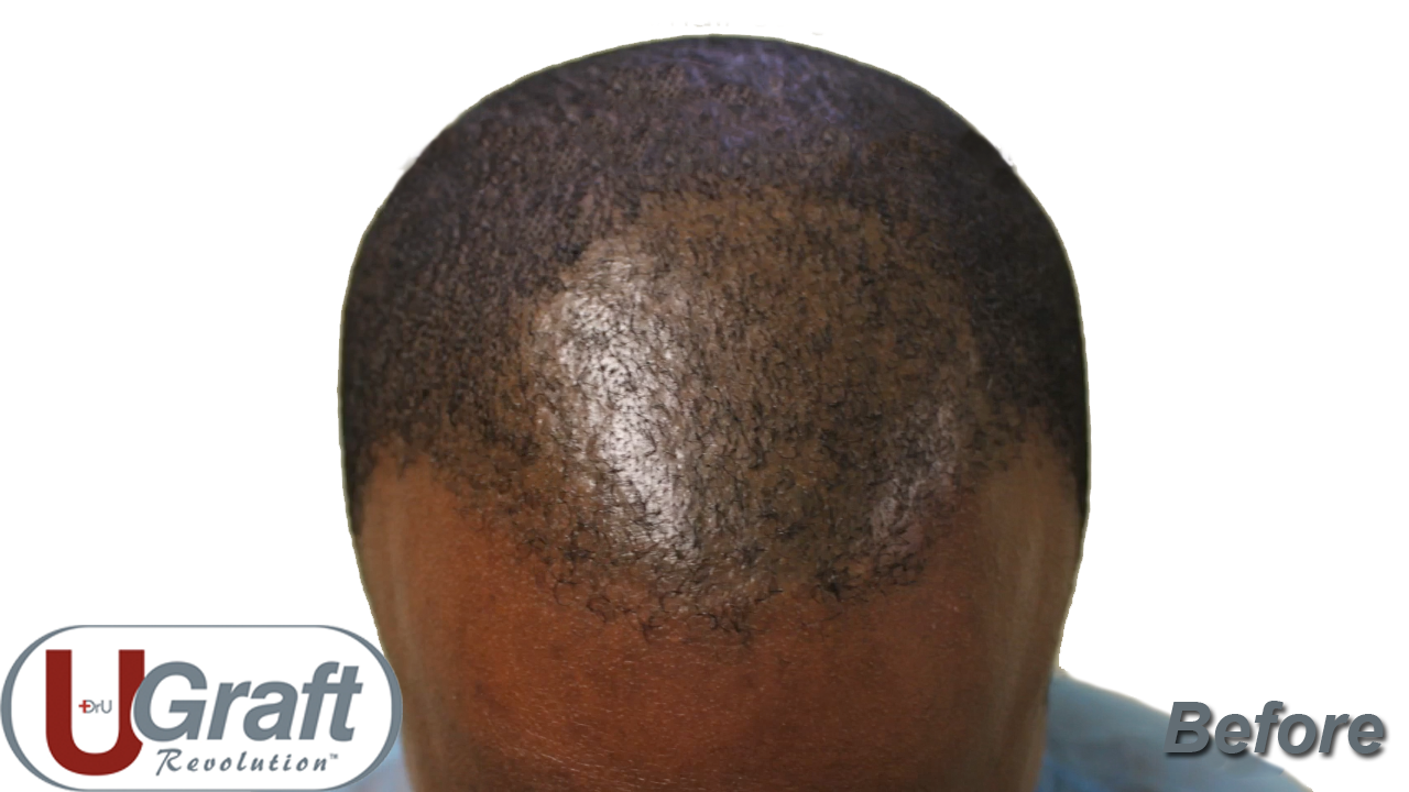 Patient before his black male hair transplant procedure. The results of previous attempts to address his scarring hair loss can be seen, although none were particularly effective. Thus, he sought the best black hair transplant procedure.*