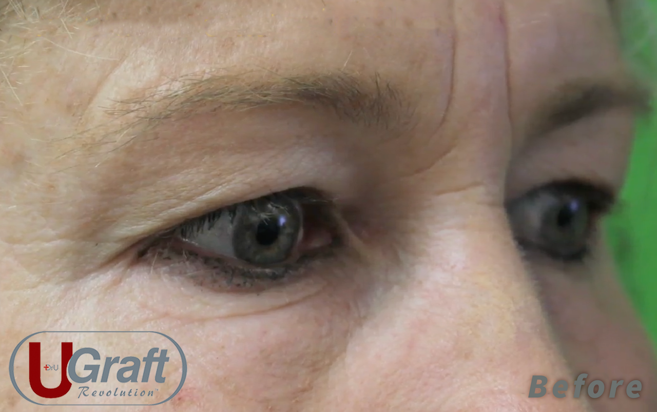 This patient sought a permanent solution for her sparse eyebrows. She chose Dr.UGraft for her eyebrow transplant procedure, inspired by a celebrity she admires.