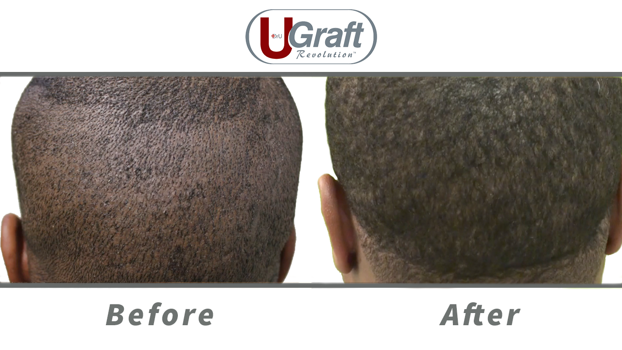 Patient's donor area before and after choosing Dr.UGraft™ for the best black hair transplant procedure.
