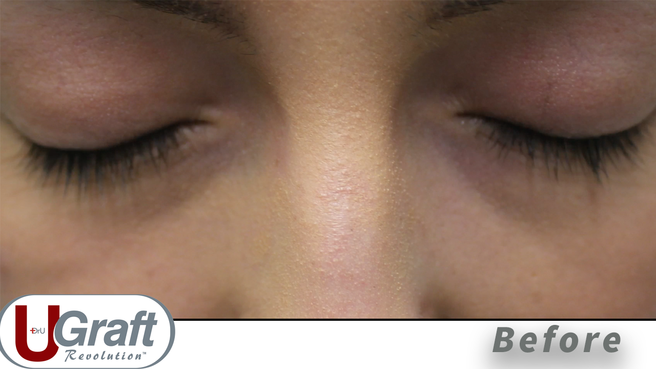 A full view of the patient before her cosmetic eyelash transplant.