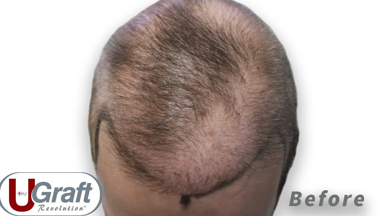 View of the top of the patient's head before his hair transplant repair poor growth correction. Odd patterns of balding can be seen.