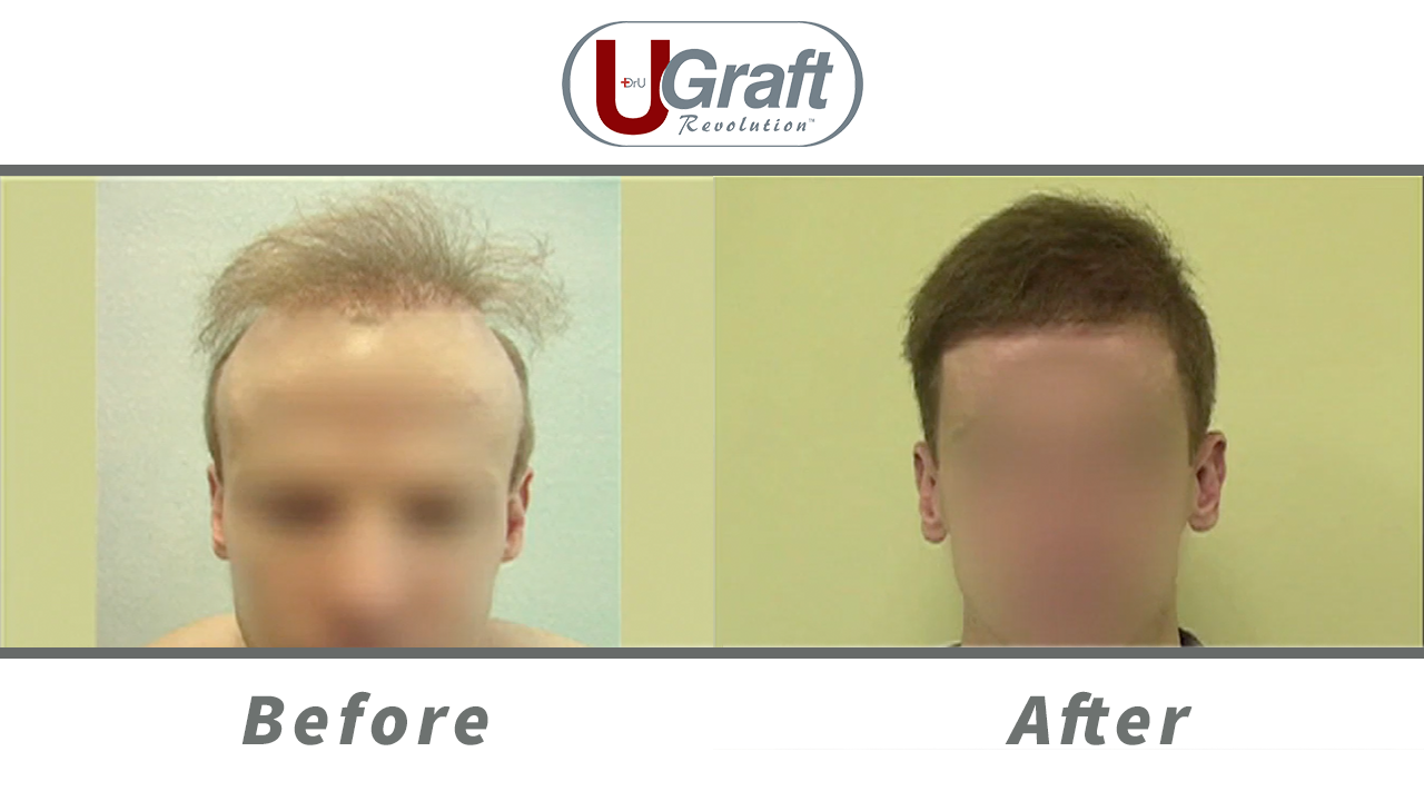 The Dr.UGraft System allowed this patient to achieve coverage and repair his hair transplant scars from previous surgeries.