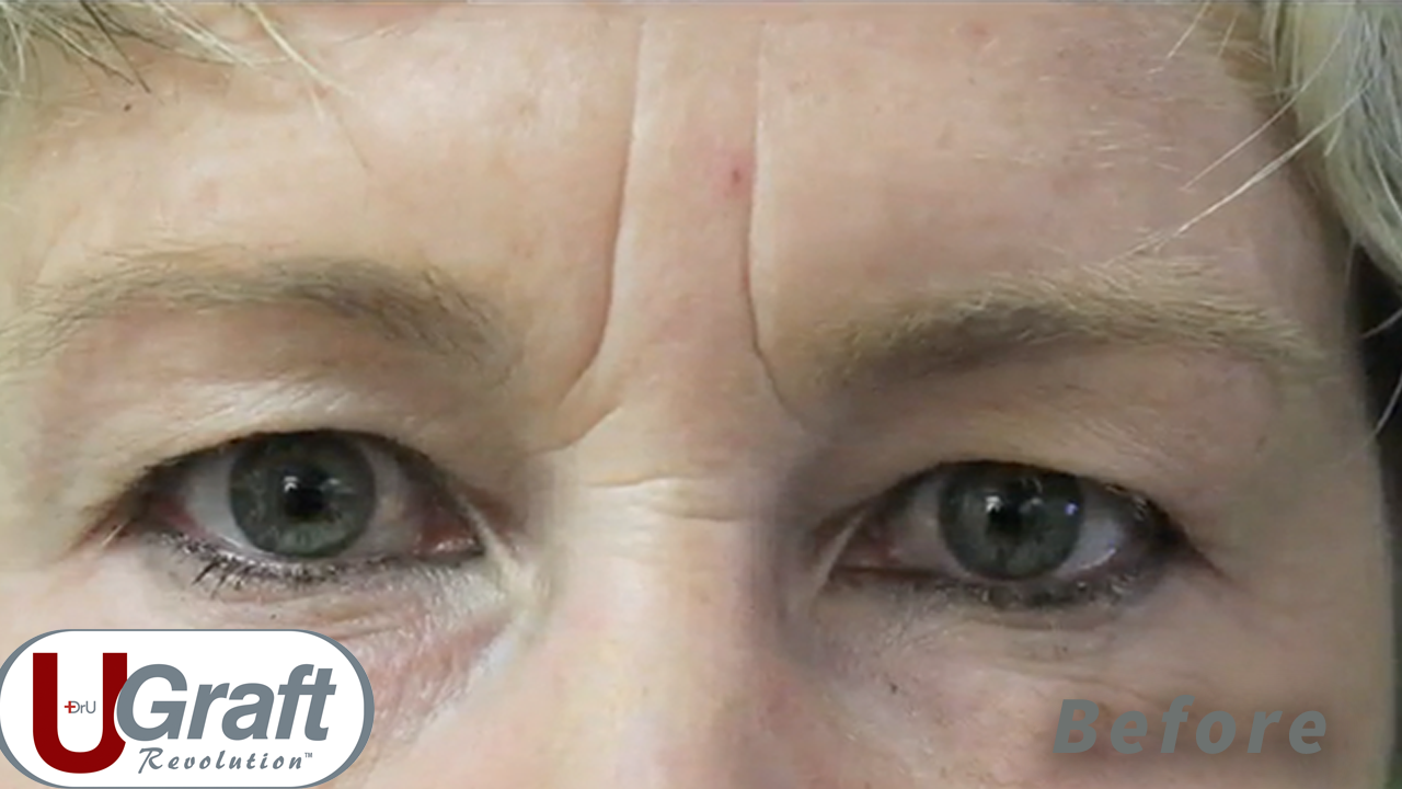 Full frontal view of the patient before her Dr.UGraft™ eyebrow transplant using nape hair.