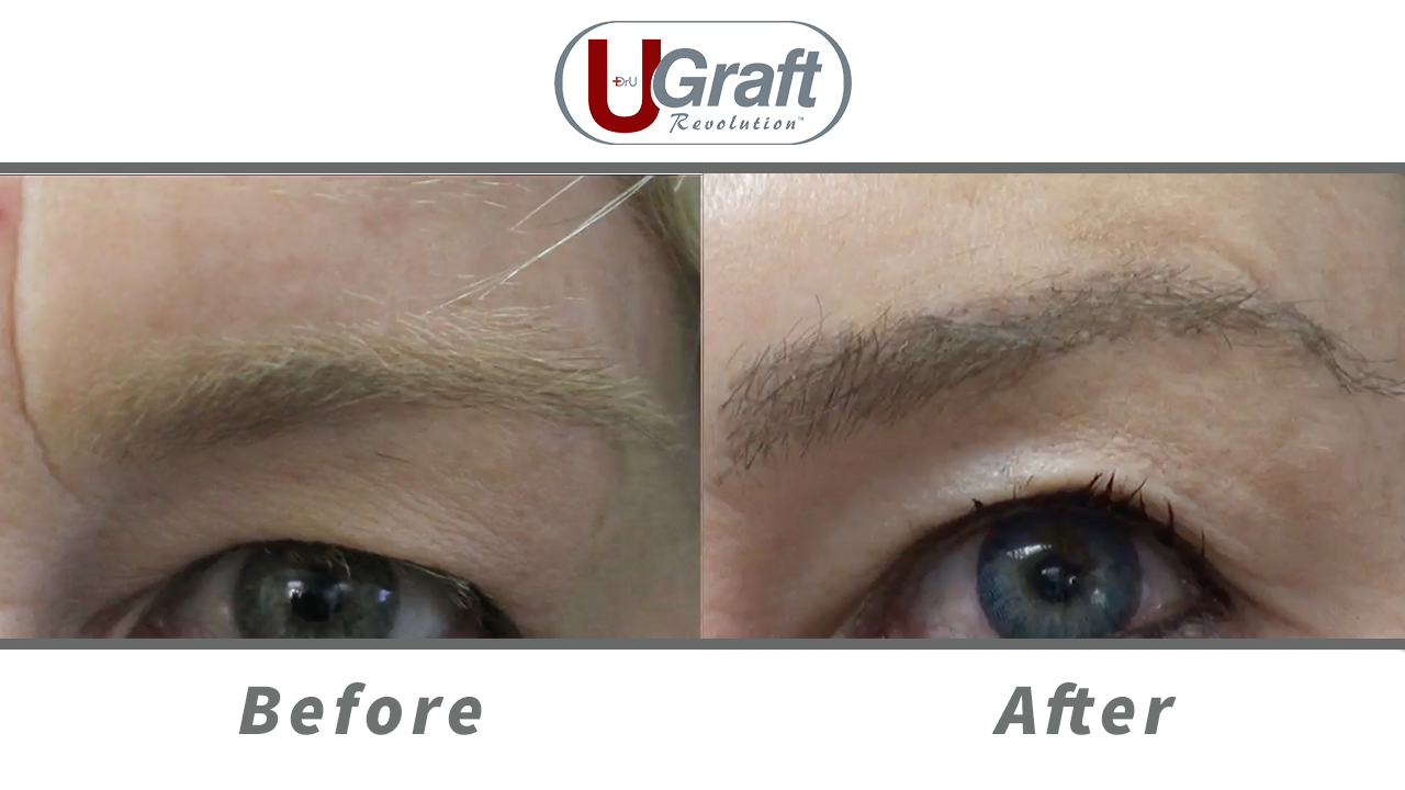 A close up view of the patient before and after her eyebrow transplant using nape hair.