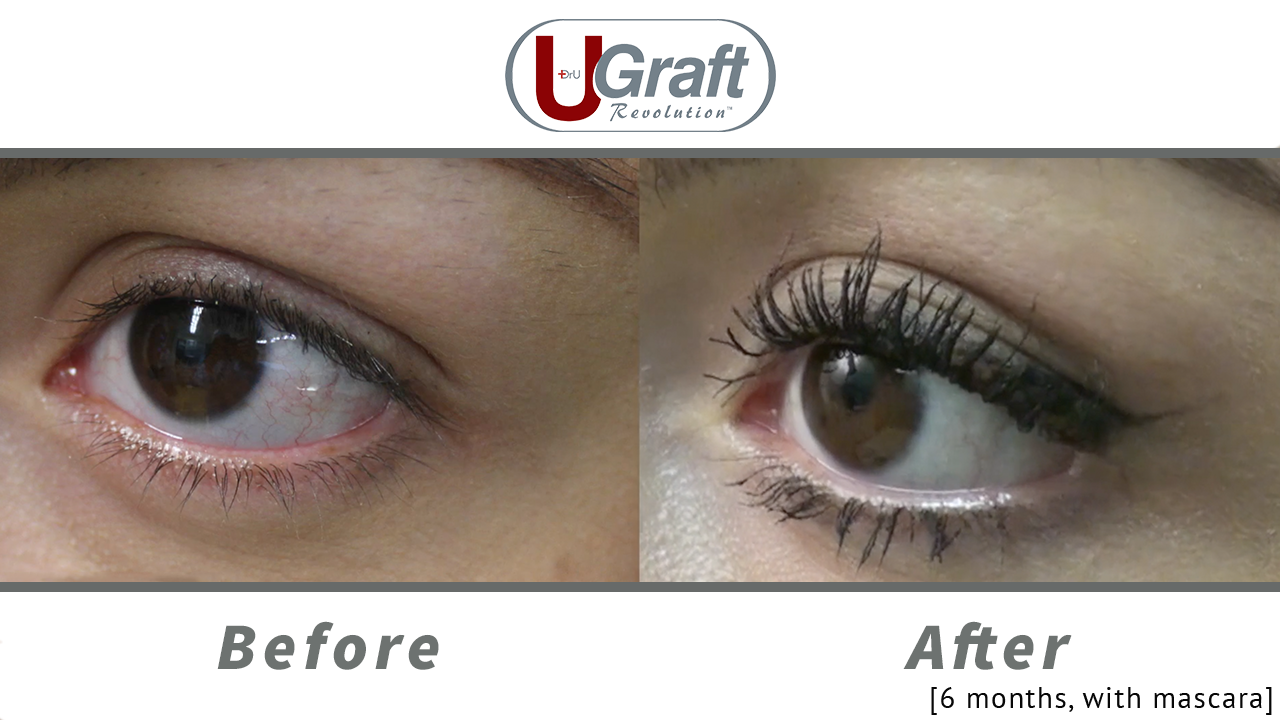 A close up of the patient's eyelashes before and after her permanent eyelash transplant, with mascara applied.