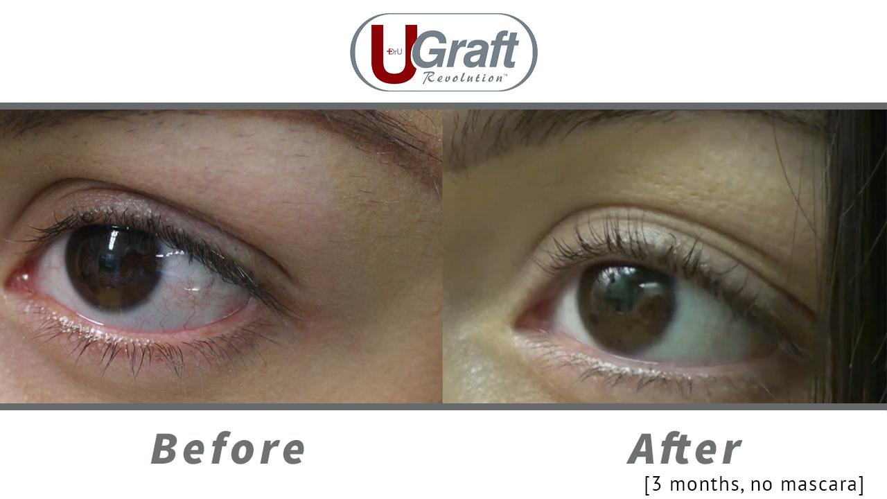Patient 3 months after her permanent eyelash transplant using leg hair.*