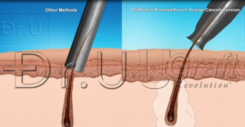 The Dr.UPunch™ gently pulls grafts upward and separates them from their neighboring attachments.