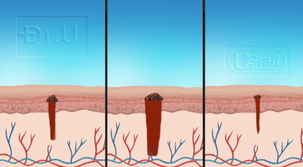 The wound profiles left behind by other FUE punches (left, middle) tend to remain round and bumpy after healing. The less everted edges created by the Intelligent Punch™ (right) typically result in smaller, flatter scars in the donor area.