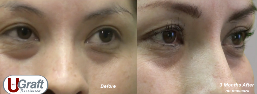 This patient received a Dr.UGraft eyelash transplant using leg hair.*
