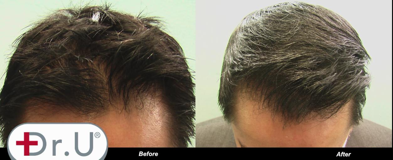 Choosing Nape Hair for Natural Hairline Edges