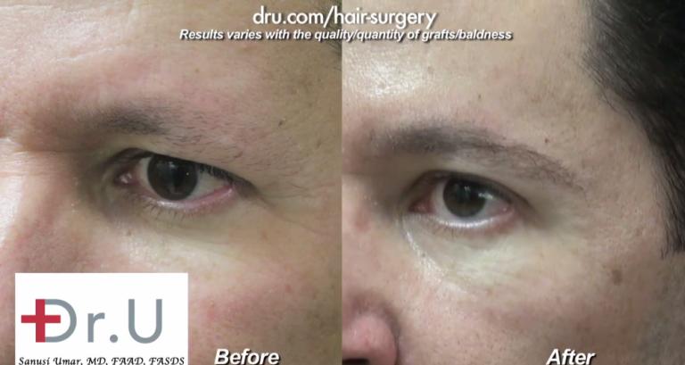 Choosing Leg Hair For Eyebrow Restoration Surgery
