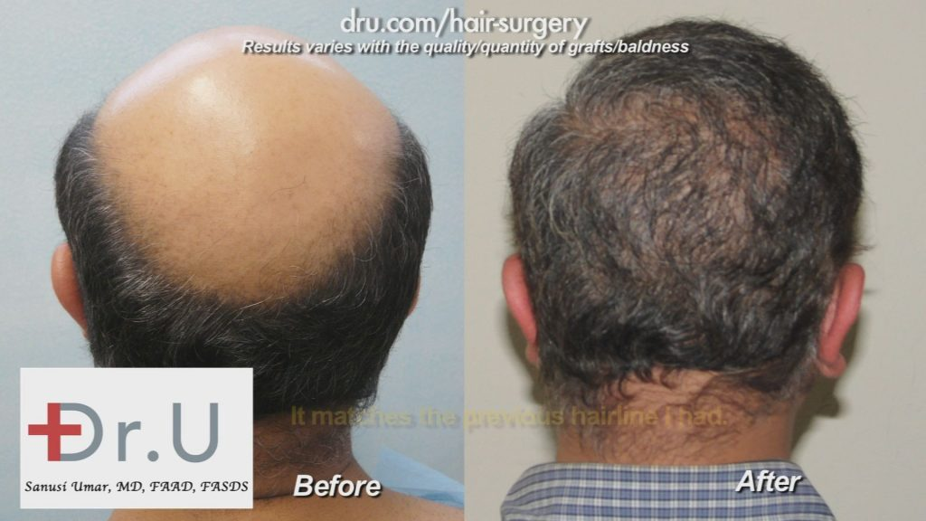 Reversing Severe and Advanced Stages of Baldness