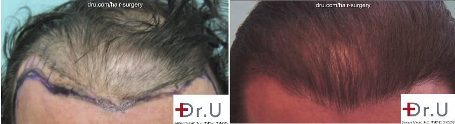 Repair for Hair Flap Surgeries – Juri Flap, Flemming Mayers, Elliot Flap