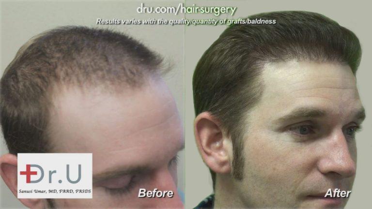 Hair Transplant Repair Procedures to Reverse Poor Growth From Past Surgeries
