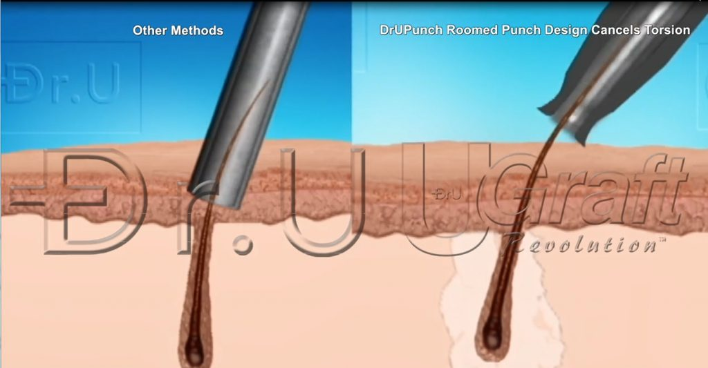 Increasing graft bulkiness to improve hair transplant growth involves avoiding torsional injuries among many factors.