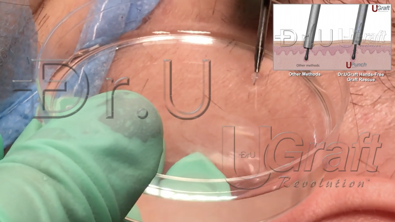 The Dr.UGraft hands-free graft rescue feature optimizes surgical hair transplant performance by allowing physicians to save impacted grafts with the push of a foot pedal. The photo above shows an impacted graft mid-ejection into a container of physiological fluid.