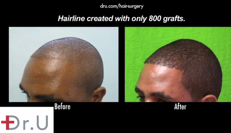 African American hair loss treatment using the Dr.UPunch Smart™ to extract donor follicles that successfully grew in for this patient's hairline, temples and crown