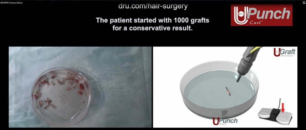 The best success rates for African American hair transplants require the use of specially designed instruments, like the Dr.UPunch Curl