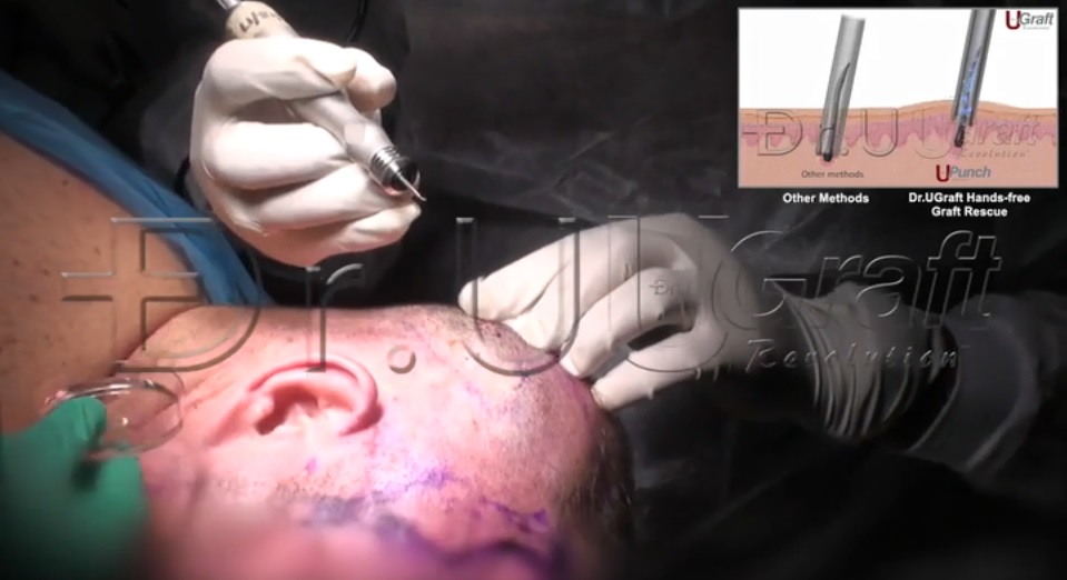 The Dr.UGraft hands-free graft rescue is one of the features that enables better ergonomics to improve hair transplant results