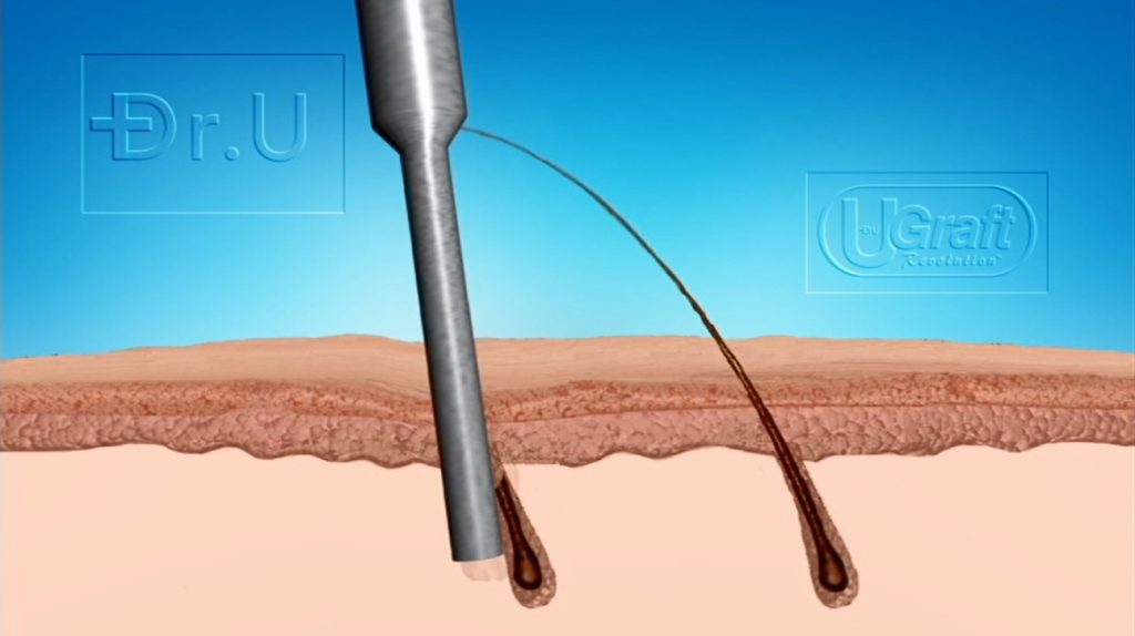 Image illustrates how basic punches may incur poor hair transplant growth from graft misalignment injuries