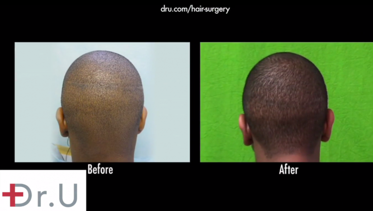 The best success rates for African American hair transplants are made possible through the successful extraction of grafts for long-term growth