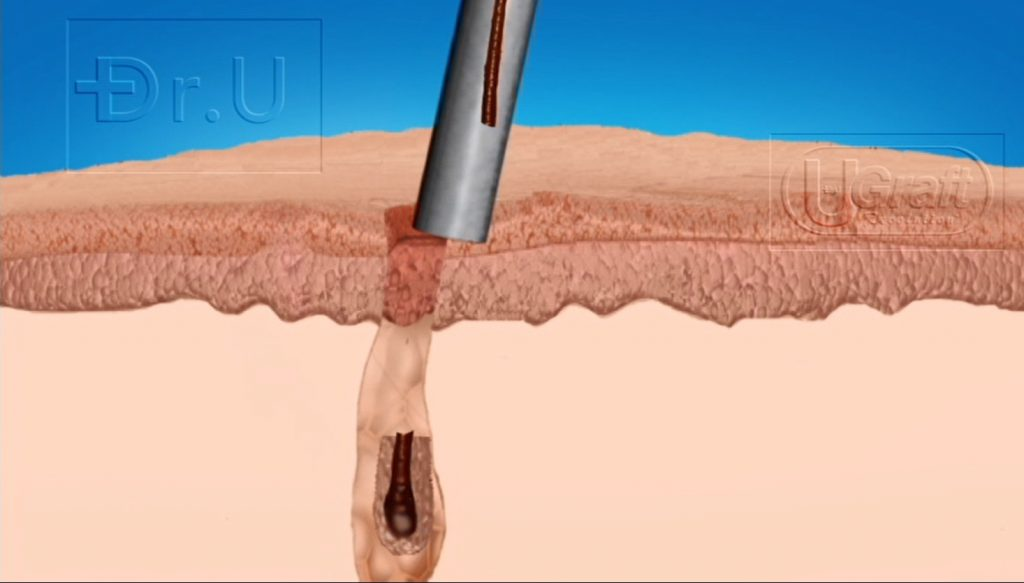 Torsion injuries from regular hair transplant punches can result in graft breakage