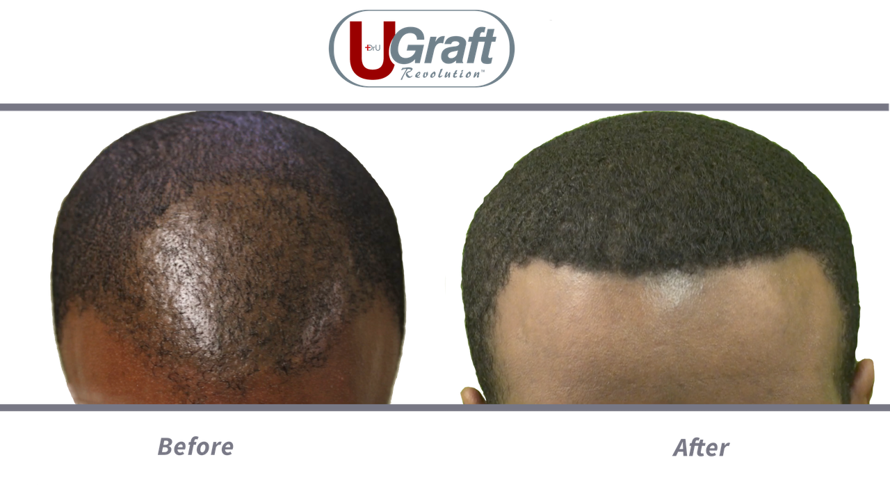 This patient benefited from 1400 grafts safely extracted with the Dr.UPunch Curl. Afro-textured hair typically covers more surface area on the scalp, which translates to a lower graft requirement.