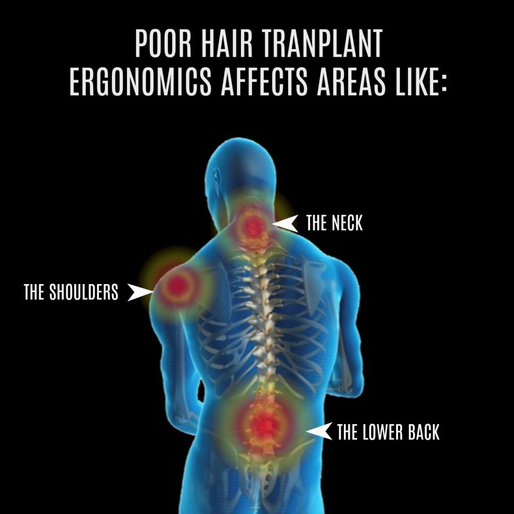 Pain in the shoulders, neck and the lower back can undermine surgical hair transplant performance. However, this can be minimized with proper ergonomics.