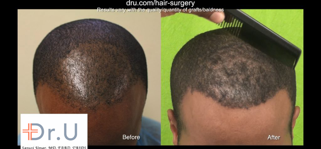 This black male hair transplant surgery was performed on a patient with hair loss due to cicatricial alopecia