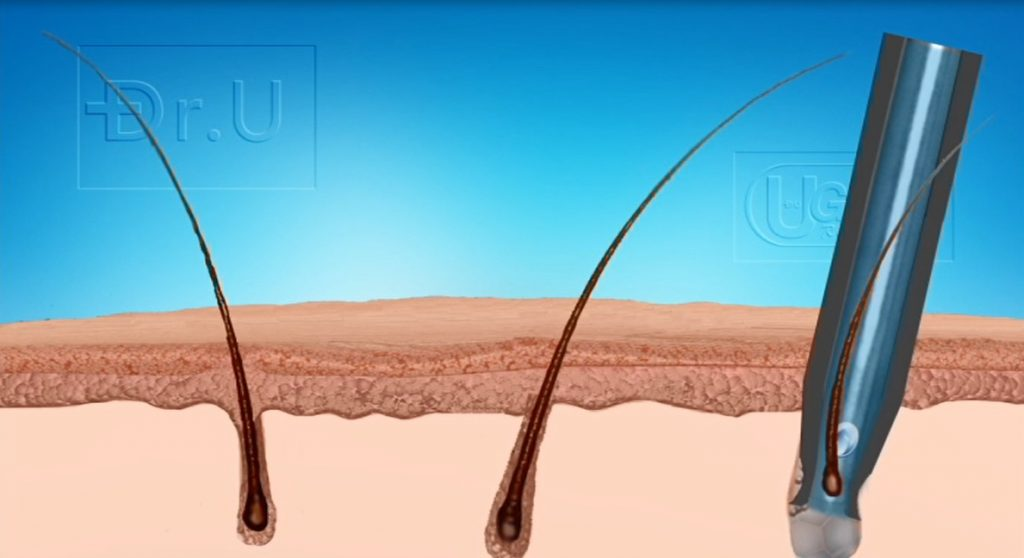 One of the ways in which the Dr.UGraft Swiping Maneuver avoids poor yield after hair transplant is through lowering graft our of body time. Another way in which the Dr.UGraft System avoids poor growth is due to graft hydration.