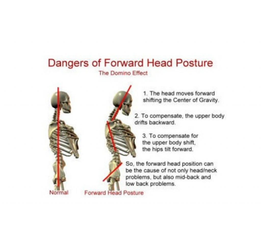 A straight posture is one way to prevent hair transplant stress injuries