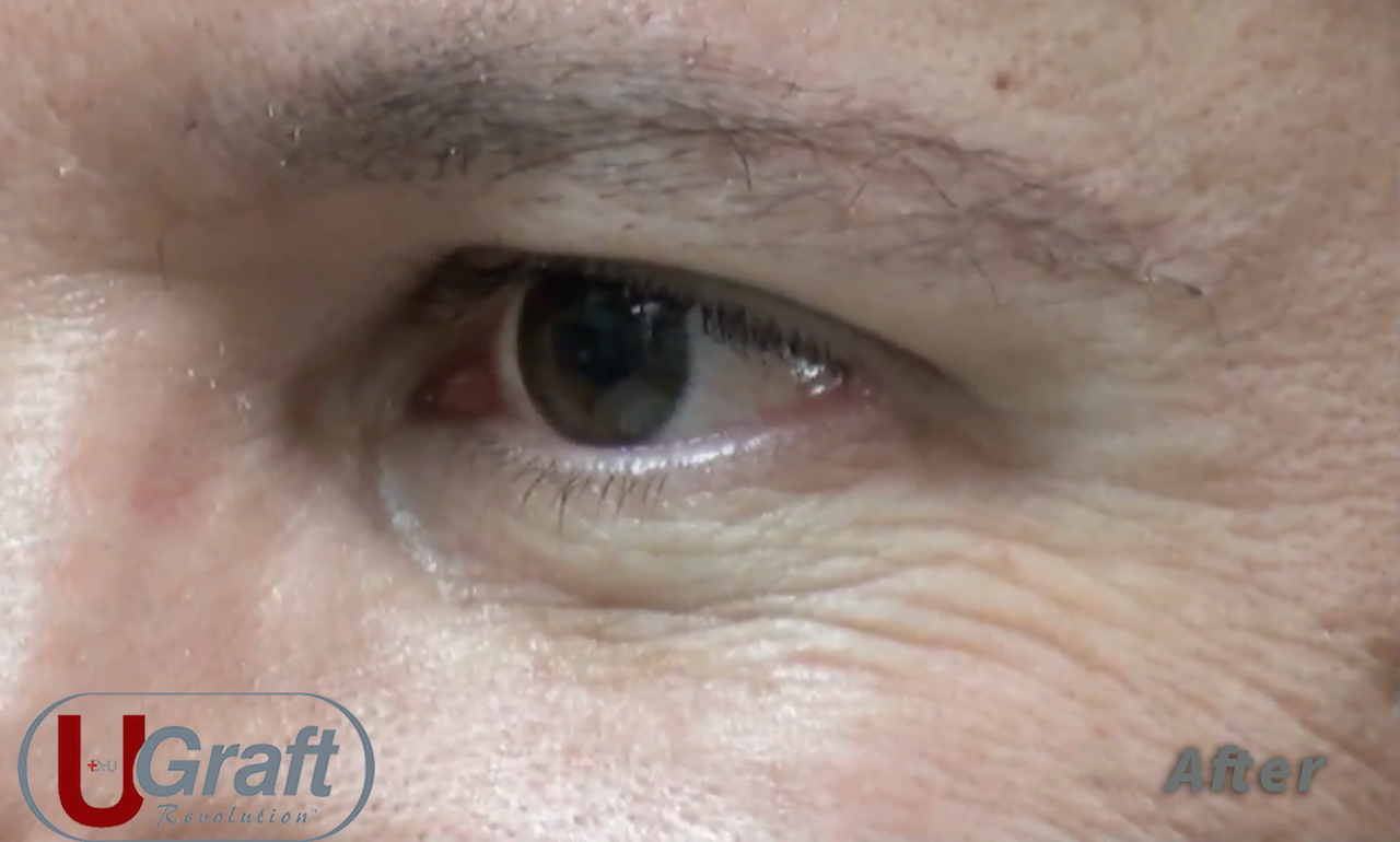 This patient benefited from a Dr.UGraft™ eyebrow transplant using leg hair. The procedure enabled him to grow his eyebrows into a shape that suited his facial symmetry.