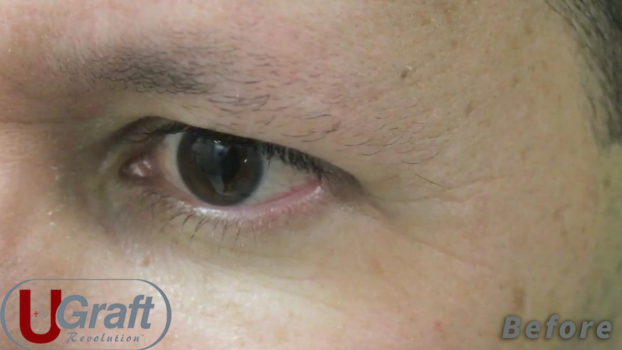 Video Eyebrow Transplant Using Leg Hair Patient Cases Drraft