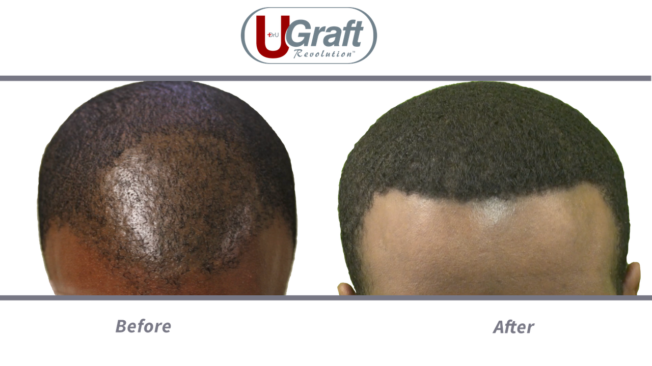 Patient before and after afro-textured hair transplant with the manual Dr.UPunch Curl™.
