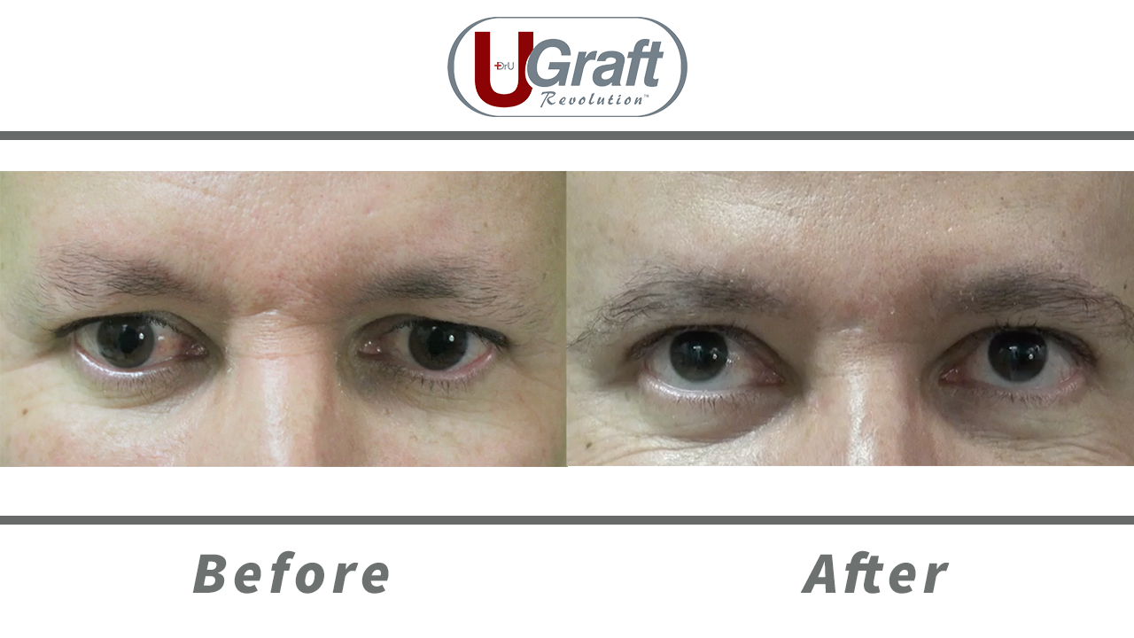 Frontal view of the patient before and after his eyebrow transplant procedure using leg hair.