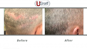 Before and after strip scar repair