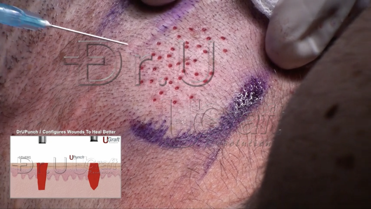 Better Linear Scar Free Hair Transplant Donor Wound Healing - Procedure Photo on Nape
