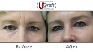 This patient received an eyebrow transplant using nape hair with the Dr.UGraft System.