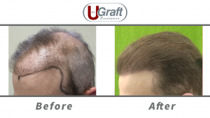 The Dr.UGraft System helped this patient correct poor growth after previous hair transplant at other clinics.