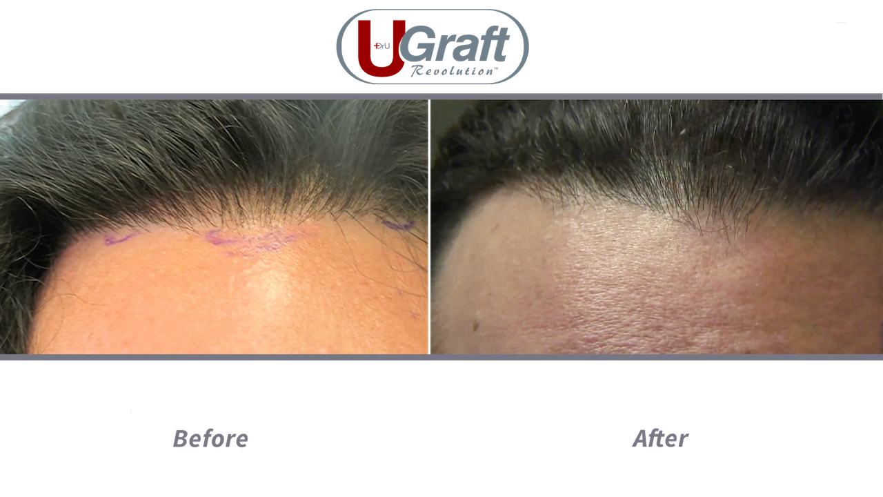 The patient above received a 1000 grafts hair transplant with Dr.UGraft. The Intelligent Punch (Dr.UPunch i) was used to extract leg hair for this advanced procedure.