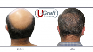 The Intelligent Punch (Dr.UPunch i helped this patient meet a high graft estimate by augmenting the donor supply with beard grafts.