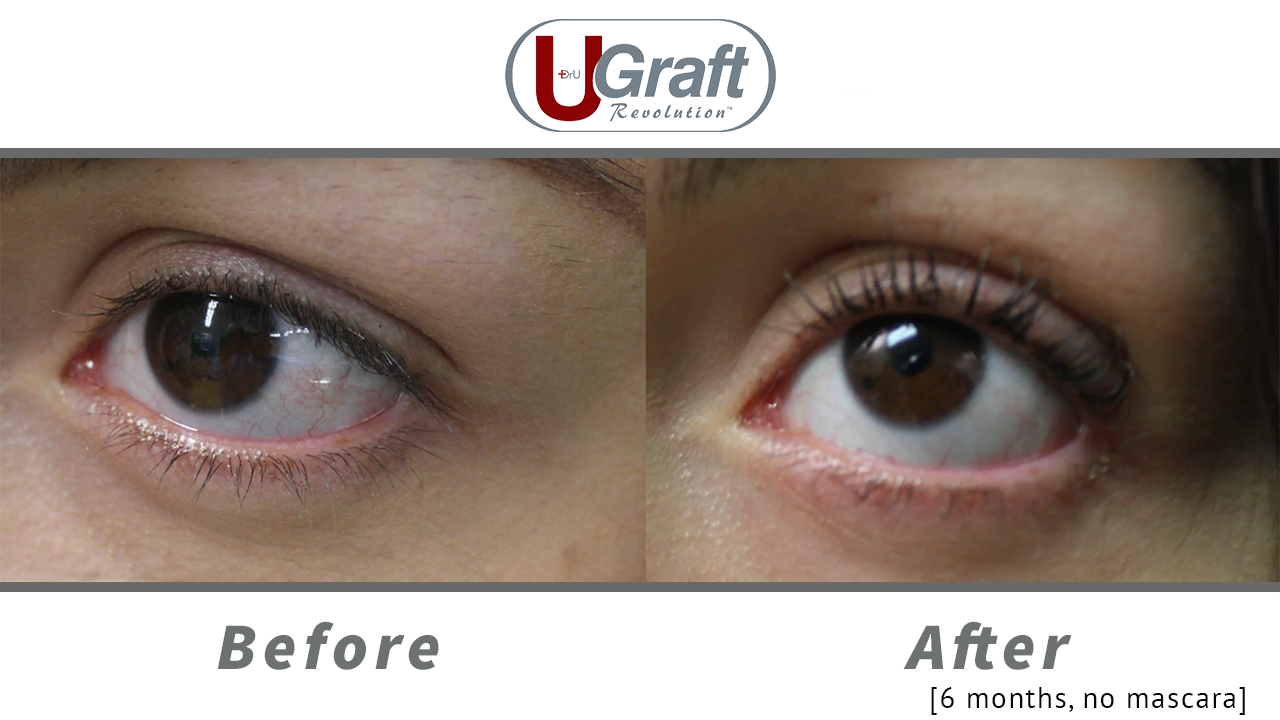 Close up view of the patient before and 6 months after her eyelash transplant using leg hair, with no mascara applied.