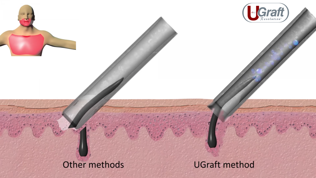 While conventional punches often wind up transecting angled body hair follicles, the unique, patented flared tip of the Intelligent Punch™ (Dr.UPunch i™) enables a hybrid cutting axis that is directed away from the follicle.