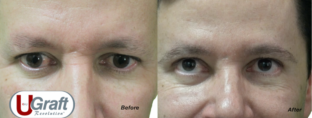 The Intelligent Punch™ was used to extract leg hair for this patient's eyebrow restoration procedure. He was left with natural, high-quality results.*